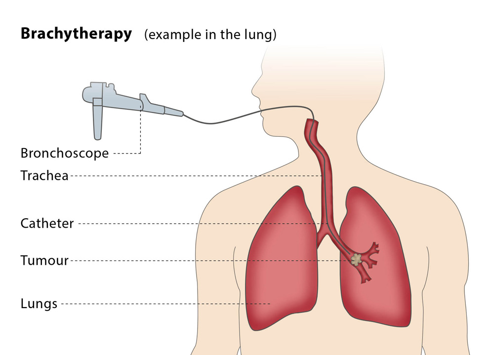 Brachytherapy-exampple-in-the-lung(1000x719)