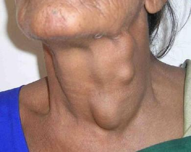 Head-Neck-cancer-surgery2-1510901186848